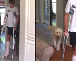 Funny Dog Mocks Human Brother's Broken Leg 'Walk' Behind His Back