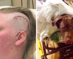 Dog Sees Woman Passing Out After Violent Seizure, Now He Never Leaves Her Side